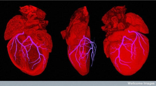 B0007341 Mouse heart showing position of coronary arteries